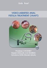 Video-Assisted Anal Fistula Treatment (VAAFT)