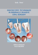 Endoscopic Techniques in Minimally Invasive Oral Surgery