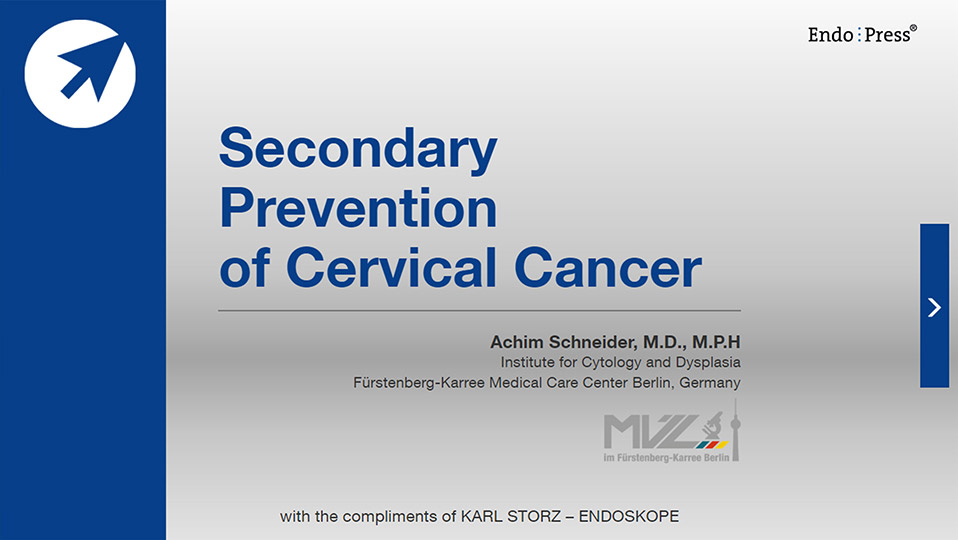 Secondary Prevention of Cervical Cancer – online version