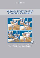 Minimally Invasive AC Joint Reconstruction (MINAR®)