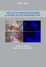 NIR / ICG Fluorescence Imaging in Thoracoscopic Segmentectomy