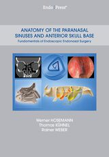 Anatomy of the Paranasal Sinuses and Anterior Skull Base Anatomy of the Paranasal Sinuses and Anterior Skull Base –  Fundamentals of Endoscopic Endonasal Surgery