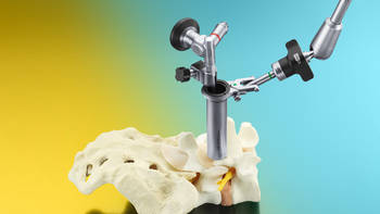 EasyGO!® II Generation –  Tubular System for Endoscopic Spine Surgery